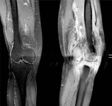 MR av båda knäna för jämförelse: Aggressiv bild med stora usurerande förändringar, framförallt i tibia. Även betydande ödem och kontrastuppladdning i kringliggande mjukdelar. Misstänkt abscessbildning i anslutning till knät. Septisk artrit kan inte uteslutas.