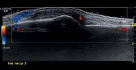 Bild 1: Dorsal ultraljudsundersökning av MCP 2.
