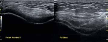 Bild 2: Ultraljudsundersökning av distala femur vid full flexion av knäled.