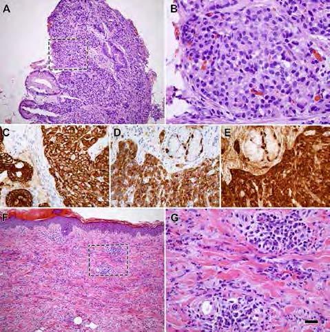 Figur 1. Histologi av ventrikel- (A–E) och hudbiopsier (F–G). A–B: H&E-färgning med typisk morfologi av GEP-NET, klass 1. Diagnosen bekräftas genom uttryck av ett brett spektrum cytokeratin (CKAE1/3; C), synaptofysin (D) och kromogranin A (E). F–G: H&E-färgning som visar omfattande purpura med leukocytoklastisk vaskulit.