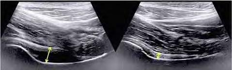 Högersidig höftledsartrit. Ultraljudsundersökning visar tecken på utgjutning (intraartikulärt anekoiskt område) med ökat avstånd mellan ledkapsel och collum femoris. Jämförelse med vänster höftled där man inte ser tecken på inflammation. Bilder från Hamed Rezaeis bildarkiv. Observera att bilderna inte är på patienten som presenteras i denna fallbeskrivning.